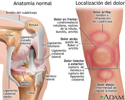Dolor de rodilla. Fuente: Blog comunidadpadel.com