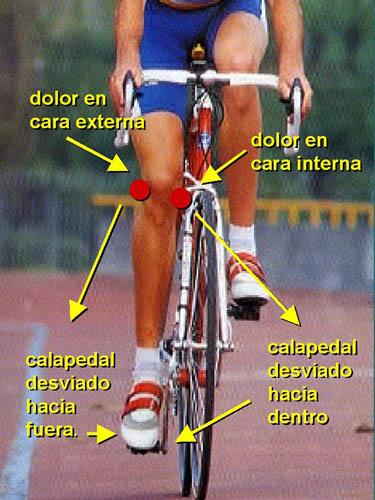 Lesión de rodilla en el ciclísmo. Fuente: blog bicicleta.galeon.com
