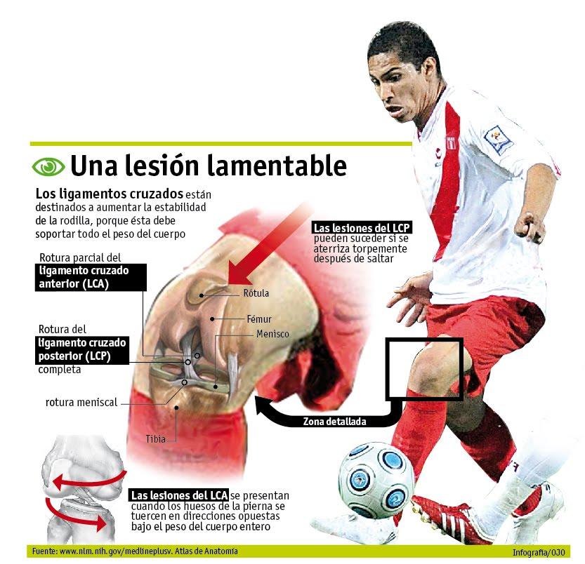 Lesión rodilla ligamentos en fútbol. Fuente: http://veli63.blogspot.com.es