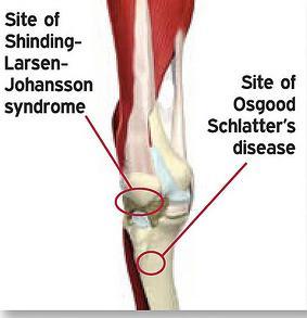 Comparando los síndromes de Larsen-Johansson y Osgood Schlatter. Fuente: www.mirandahealthcentre.com.au