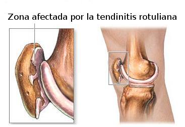 tendinitis-rotuliana. Fuente:http://www.medisportsevilla.com/