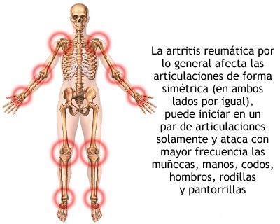 Artritis Fuente: http://tratamientoartrosis.com